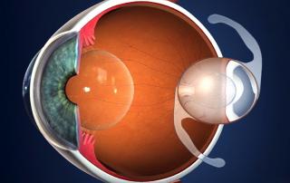 lentes intraoculares malaga