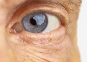oftalmologo malaga cirugia cataratas