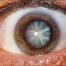 oftalmologo malaga tratamiento cataratas